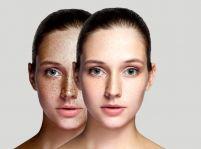 Kozmetické úpravy, vďaka ktorým budete vyzerať krajšie