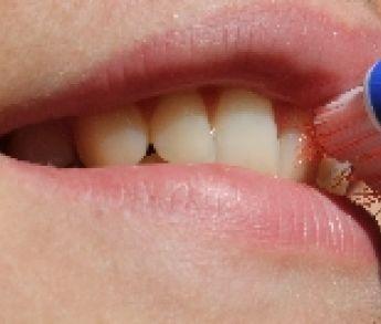Ako ošetrovať ranu po vytrhnutom zube?